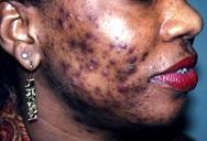 acne-vulgaris-pim...e003-1-1-45162ca